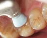 歯のお掃除に使用する道具