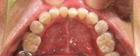 歯のお掃除 アフター
